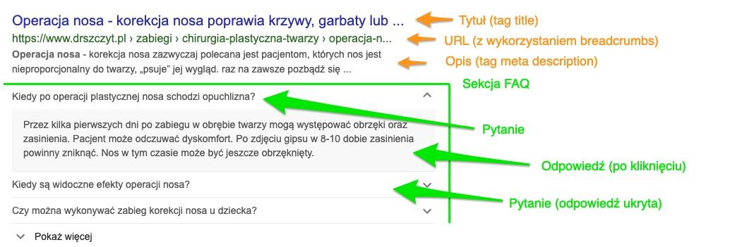Jak dodaćsekcjęFAQ z danymi strukturalnymi na stronie www stojącej na CMS WordPress